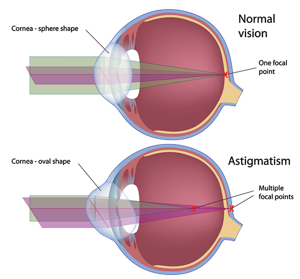 Astigmatism in Fort Worth