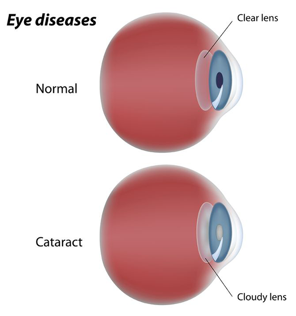 Eye Cataracts Exams and Treatments in Fort Worth, TX