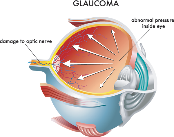 Glaucoma Treatments in Fort Worth, TX