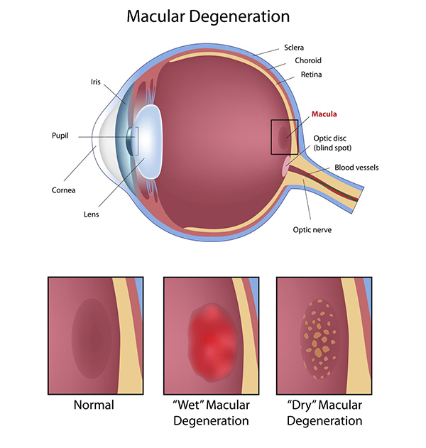 Macular Degeneration Fort Woth